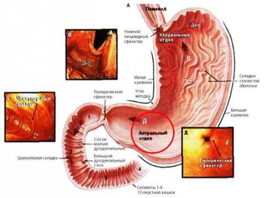 Гастрит с повышенной кислотностью симптомы и лечение диета народные рецепты