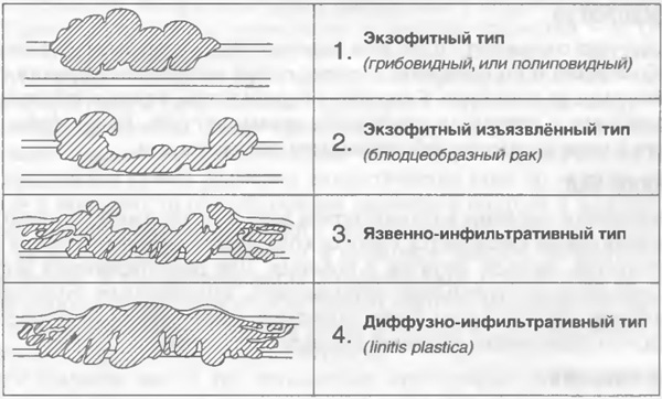 Классификация рак желудка локализация thumbnail
