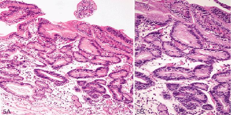 Дисплазия желудка: что это, симптомы, диагностика, лечение, профилактика