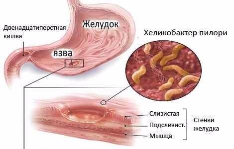 улучшение микрофлоры кишечника препараты