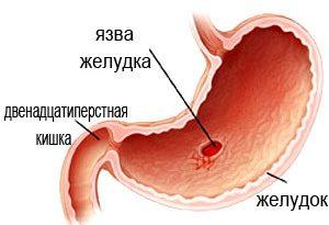yazva-zheludka-i-diareya