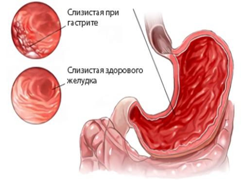 Поверхностный гастрит: лечение, симптомы, причины