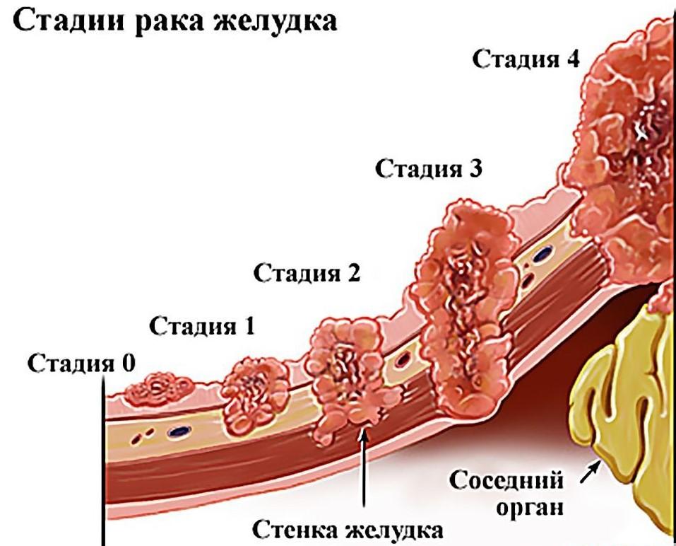 rak-zheludka-pervye-simptomy
