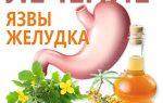 yazva-zheludka-lechenie