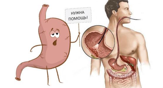 Полип желудка — симптомы, причины и лечение - симптомы, диагностика, лечение, профилактика
