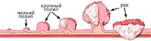 Полип розетки кардии