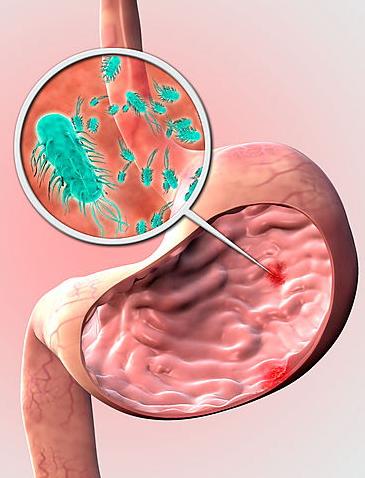 Как лечить желудок от хеликобактер пилори