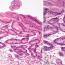 Дисплазия эпителия желудка